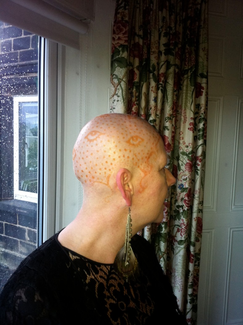 Hilly after the chemo took her hair - she will not be beaten x